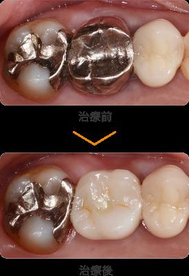 奥歯の被せ物