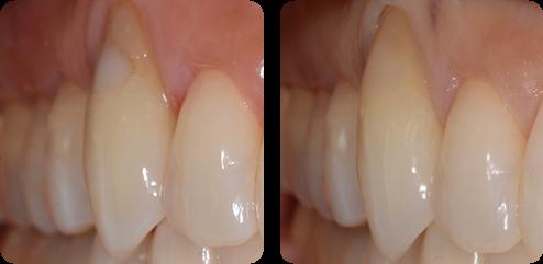 CR(白い詰め物):前歯・奥歯