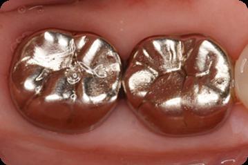 メタルクラウン(銀の被せ物):奥歯