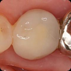 CAD/CAM冠(白い被せ物):奥歯