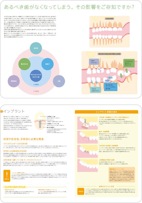 インプラント治療のセカンドオピニオン