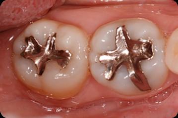 メタルインレー(銀の詰め物):奥歯