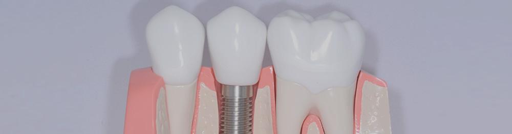 一般歯科(保険診療)